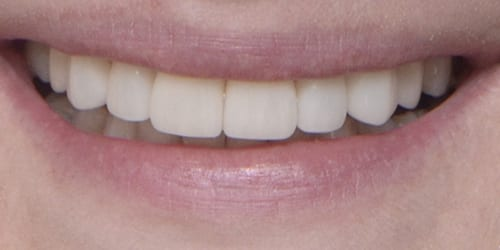 Veneers - Portia - After