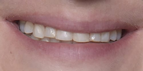 Veneers - Portia - Before