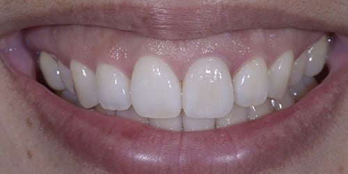 Veneers - Sariah - After