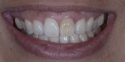 Veneers - Sariah - Before