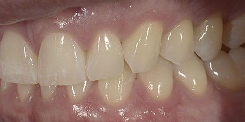 Back Teeth Matter - Example 1 - After