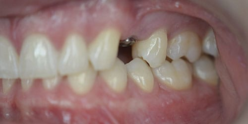 Back Teeth Matter - Example 1 - Before