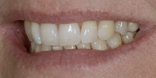 Back Teeth Matter - Example 2 - After