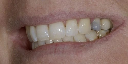 Back Teeth Matter - Example 2 - Before