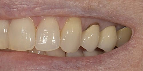 Back Teeth Matter - Example 3 - Before