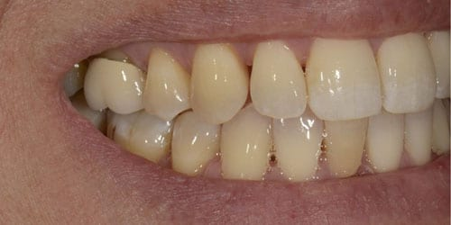 Back Teeth Matter - Example 4 - Before