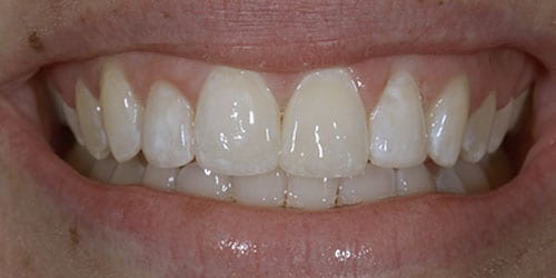Composite Bonding - Example 5 - After