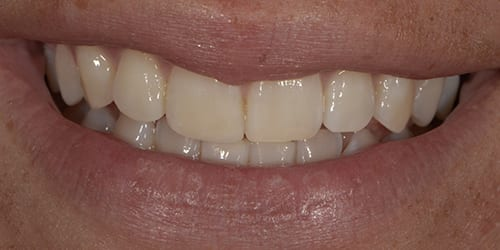Composite Bonding - Example 7 - After