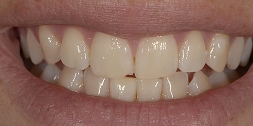 Composite Bonding - Example 7 - Before