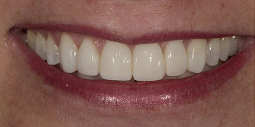 Composite Bonding - Denise - After
