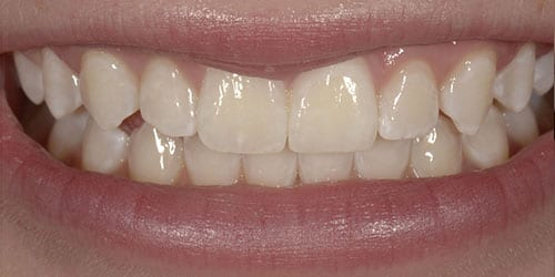 Kor Tooth Whitening - Example 3 - After