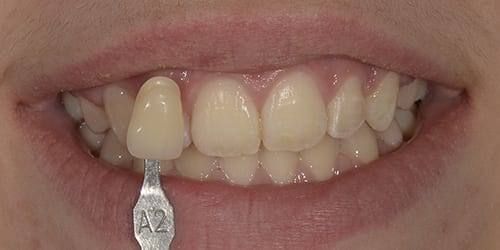 Kor Tooth Whitening - Example 3 - Before