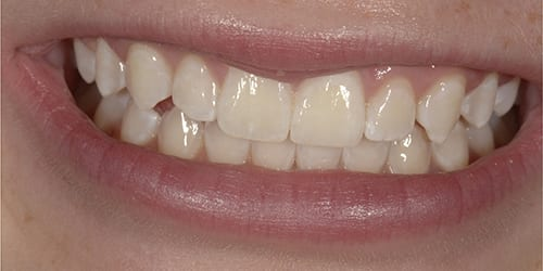 Whitening - Example 3 - After