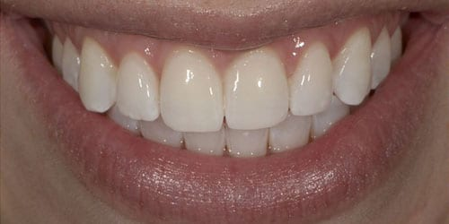 Kor ToothWhitening - Example 5 - After