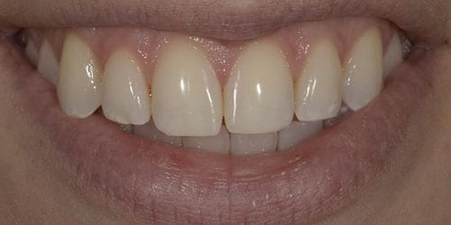 Kor ToothWhitening - Example 5 - Before