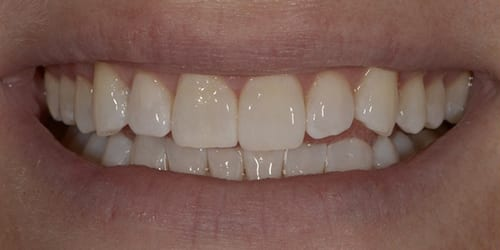 Kor ToothWhitening - Example 6 - After