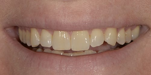 Kor ToothWhitening - Example 6 - Before
