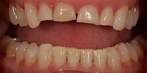 Whitening - Example 2 - After