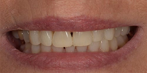 Whitening - Example 1 - After