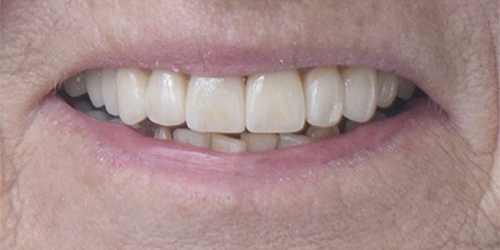 Veneers - Darlen - After