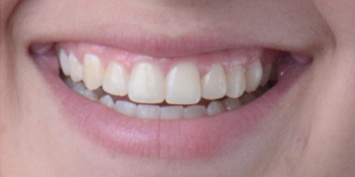 Veneers - Sara - After