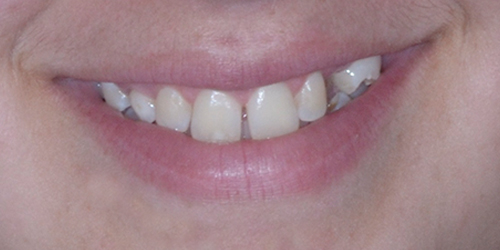 Veneers - Sara - Before