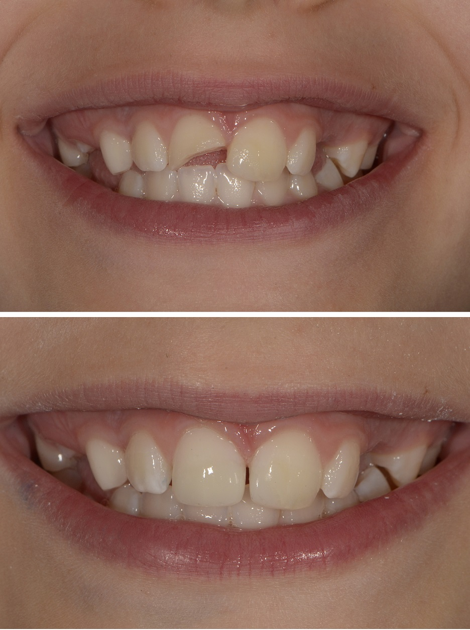 Broken front tooth fixed with composite bonding