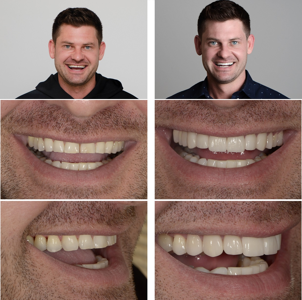 A Smile Makeover with Veneers 1