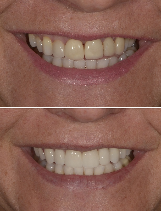 Veneers for a new symmetrical smile
