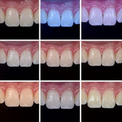 Learn About White Balance for In clinical dental photography