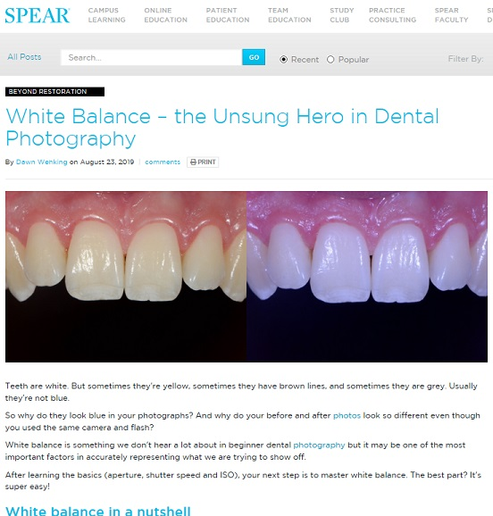 Spear Education White Balance in Dental Photography