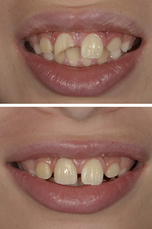 Composite Bonding when a front tooth breaks