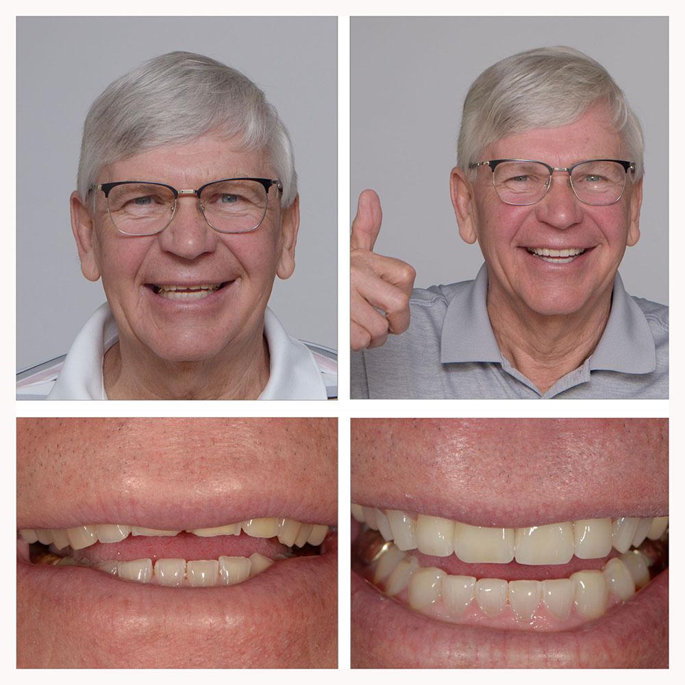 Bernies-Conservative-Smile-Makeover