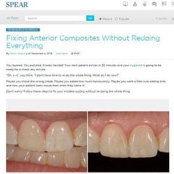 Fixing Anterior Composites Without Redoing Everything